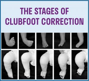 Stages of Clubfoot Correction