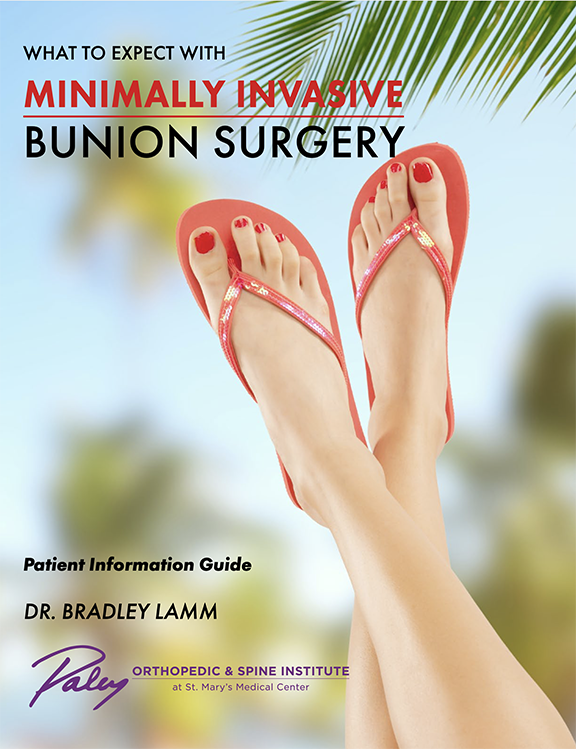 Minimally Invasive Bunion Guide