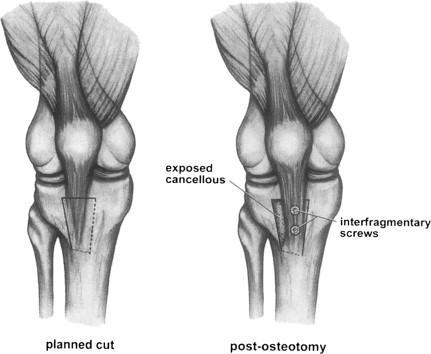 TTO Osteotomy