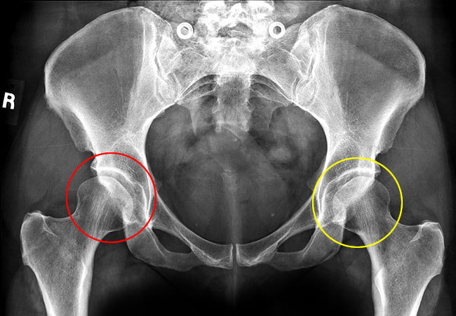 Exaggerate. pity, treatment of hip dysplasia in adults consider, that