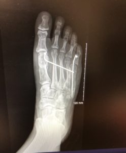 X-ray of foot with Brachymetatarsia